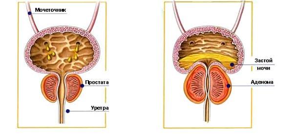 Лечение хронического застойного простатита