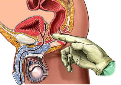 Чем лечить бактерицидный простатит