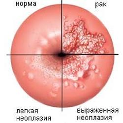 lechenie-pri-obostrenii-tsistita