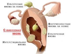 лечения субмукозной миомы матки