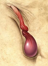 Перекрут яичка лечение