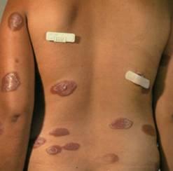 Кожные проявления сифилиса