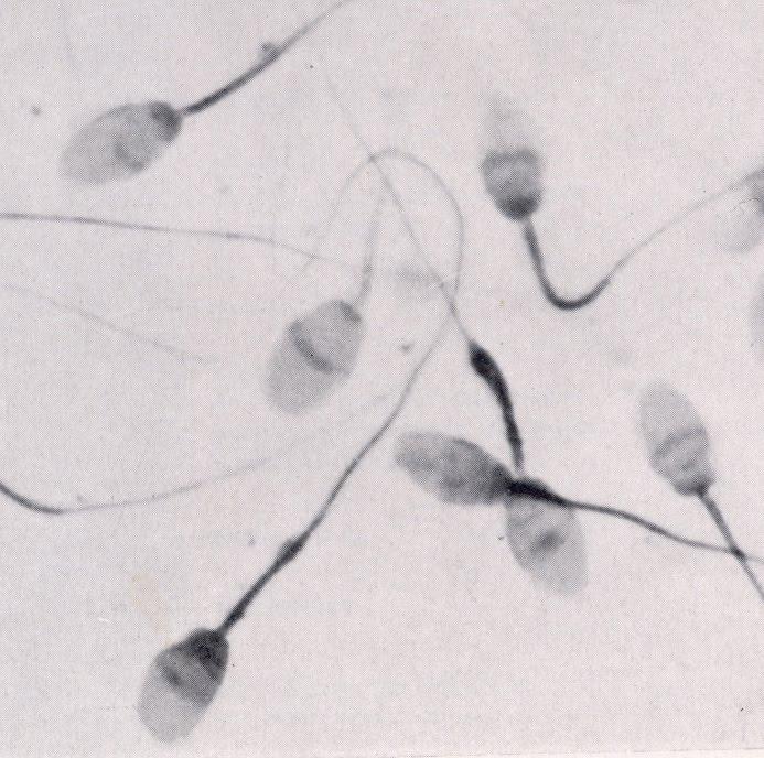 mozhet-li-sperma-zakonchitsya