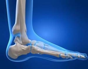 Лечение переломов лодыжки без смещения